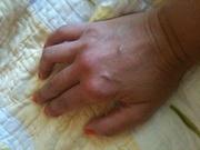 Rheumatoid Arthritis Logo