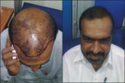 Hair Transplant Pakistan - Hair Transplant Surgery  Logo
