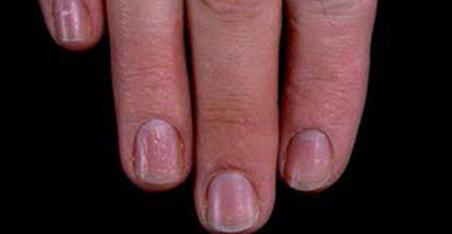 fingernail ridges