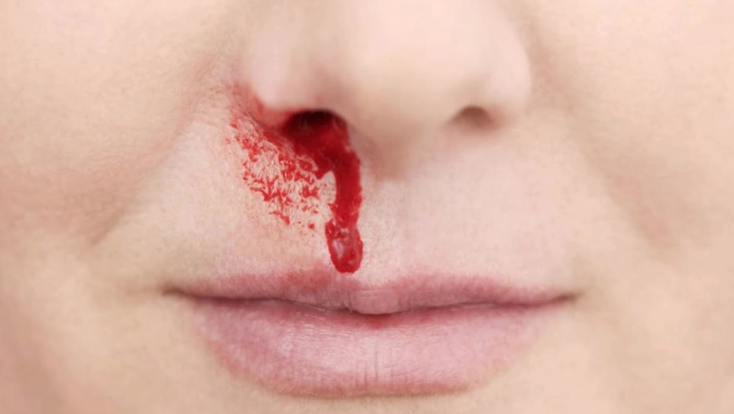 Why do I get frequent bloody noses?
