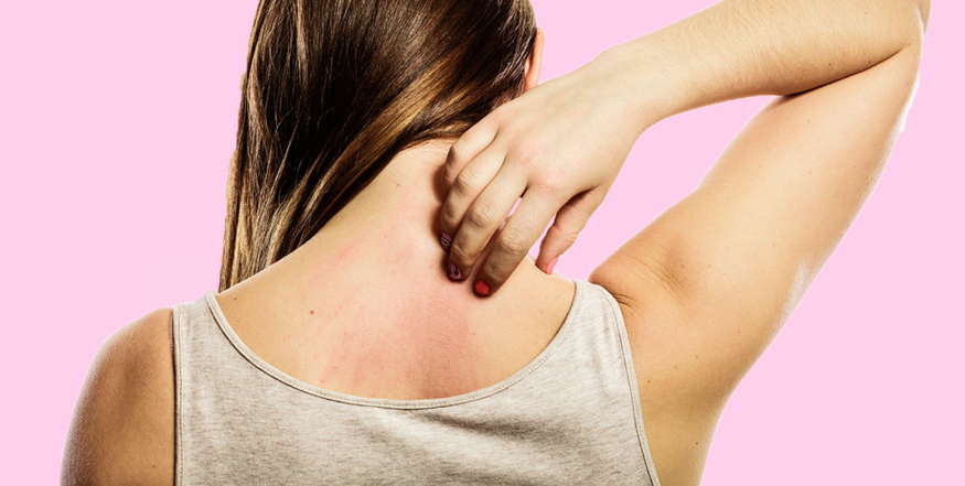 Eczema - That Itchy, Scratchy, Scaly Stuff