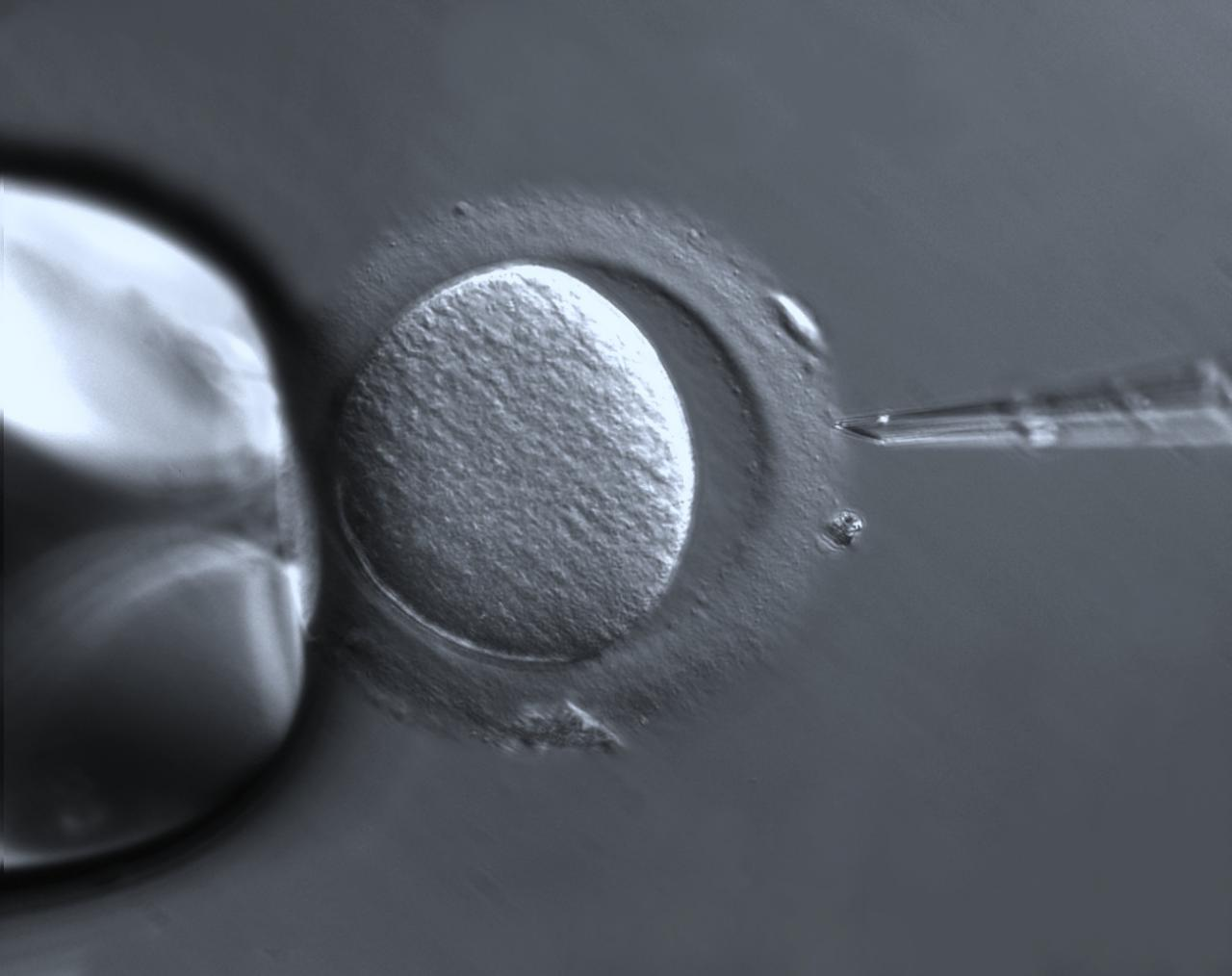 What Exactly Happens In IVF?