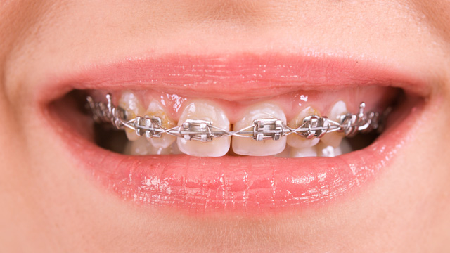 Dental health and self-esteem are linked