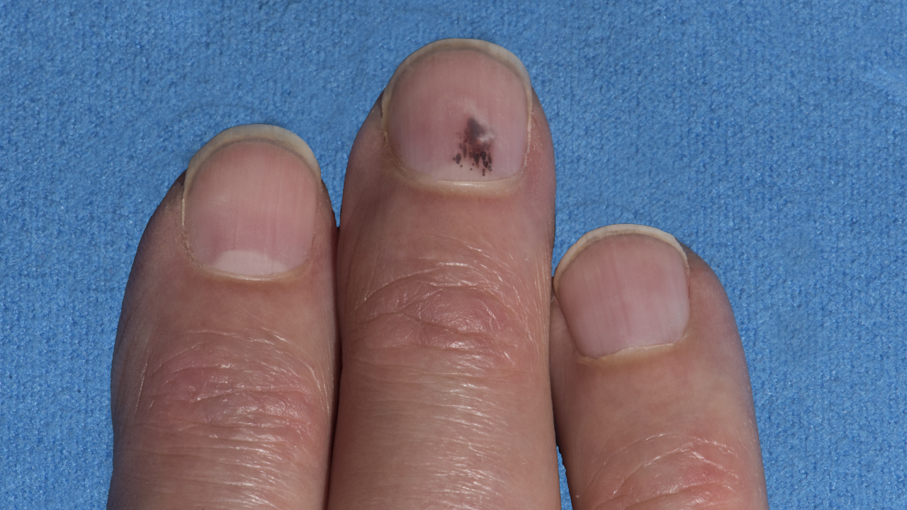[R10] Is That Blood Under My Nail or Melanoma?