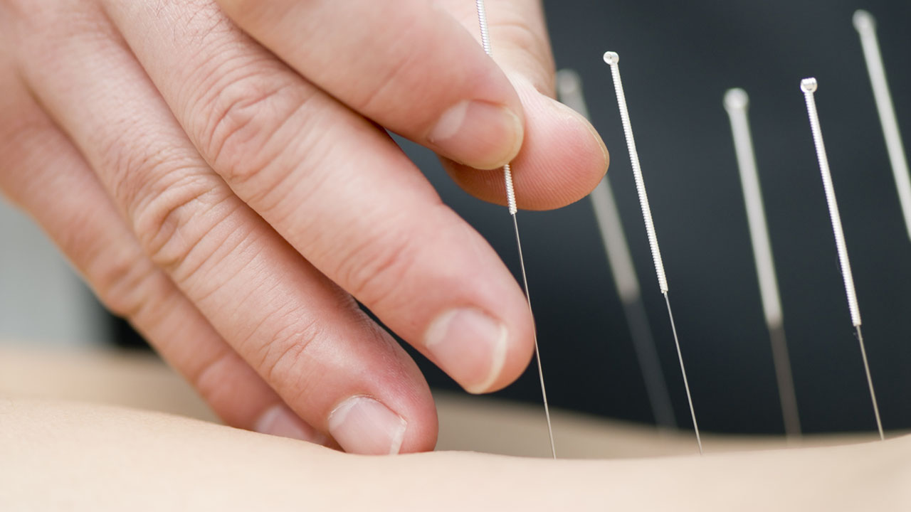 Acupuncture needle application