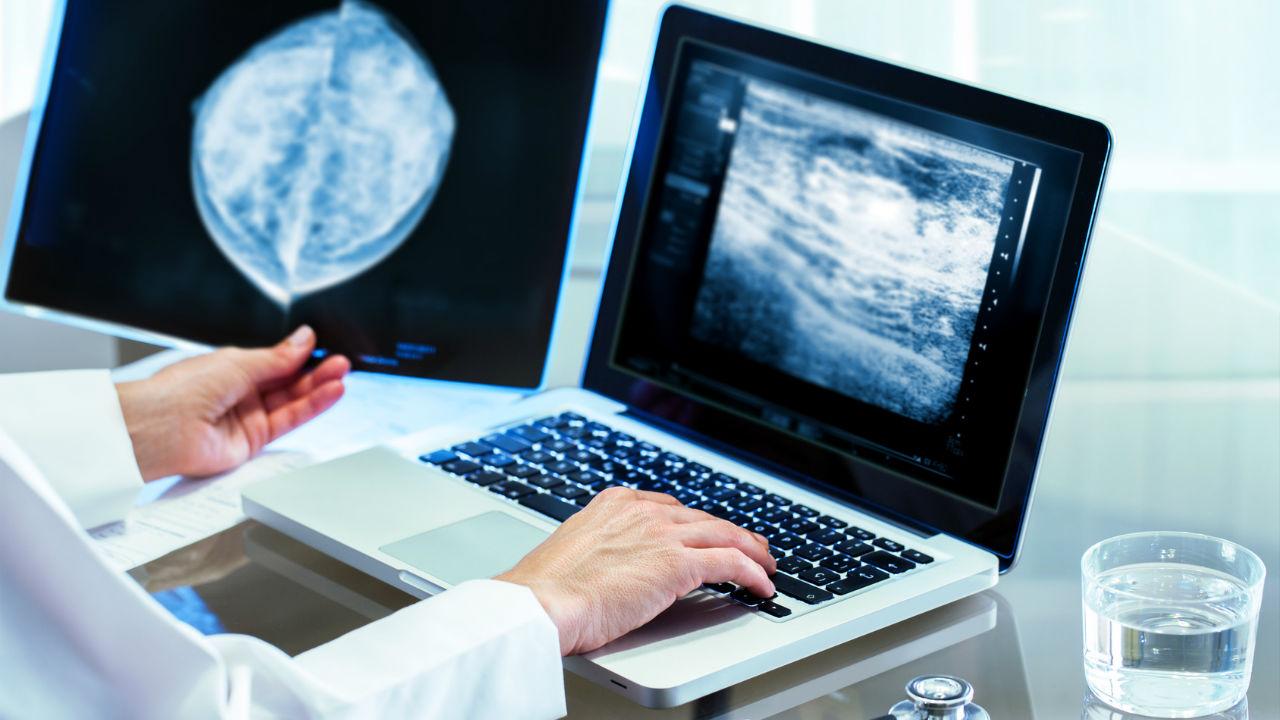 mamography