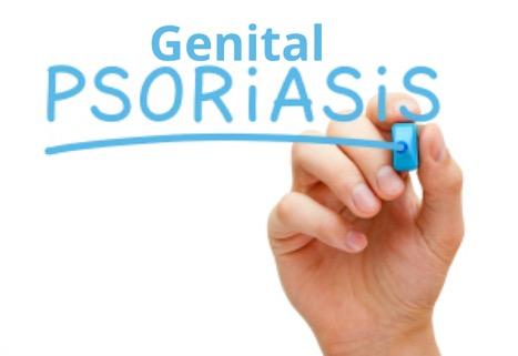 Genital Psoriasis contagious?