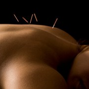 acupuncture may provide relief for pain such as sciatica