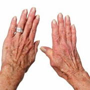 Arthritis related image