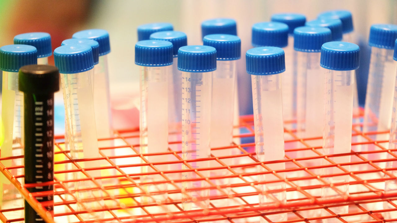 The 3 Most Common Reasons Women Are Avoiding the BRCA Gene Test