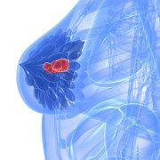 uncertainty accompanies diagnosis of breast cancer