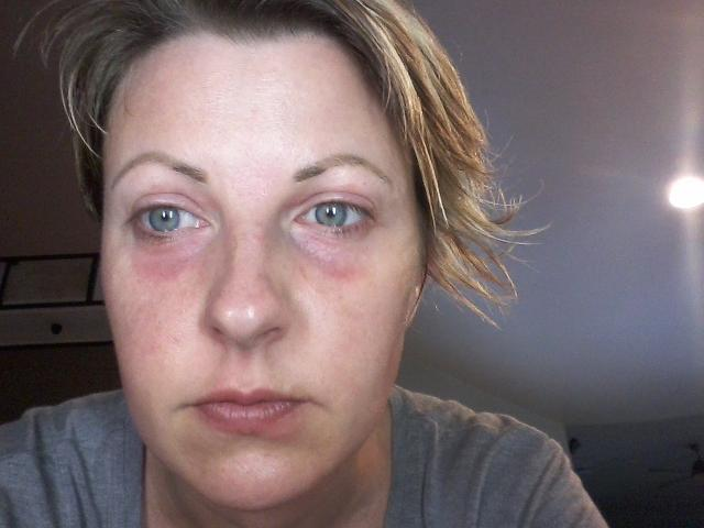 My Itchy Journey: Overcoming 10 Years of Misdiagnosed Skin Allergies