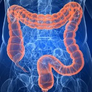 Diverticulitis related image