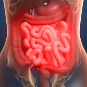 Ulcerative Colitis related image