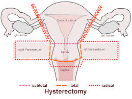 When can i have sex after hysterectomy?