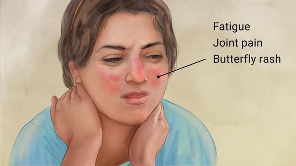 symtoms of lupus