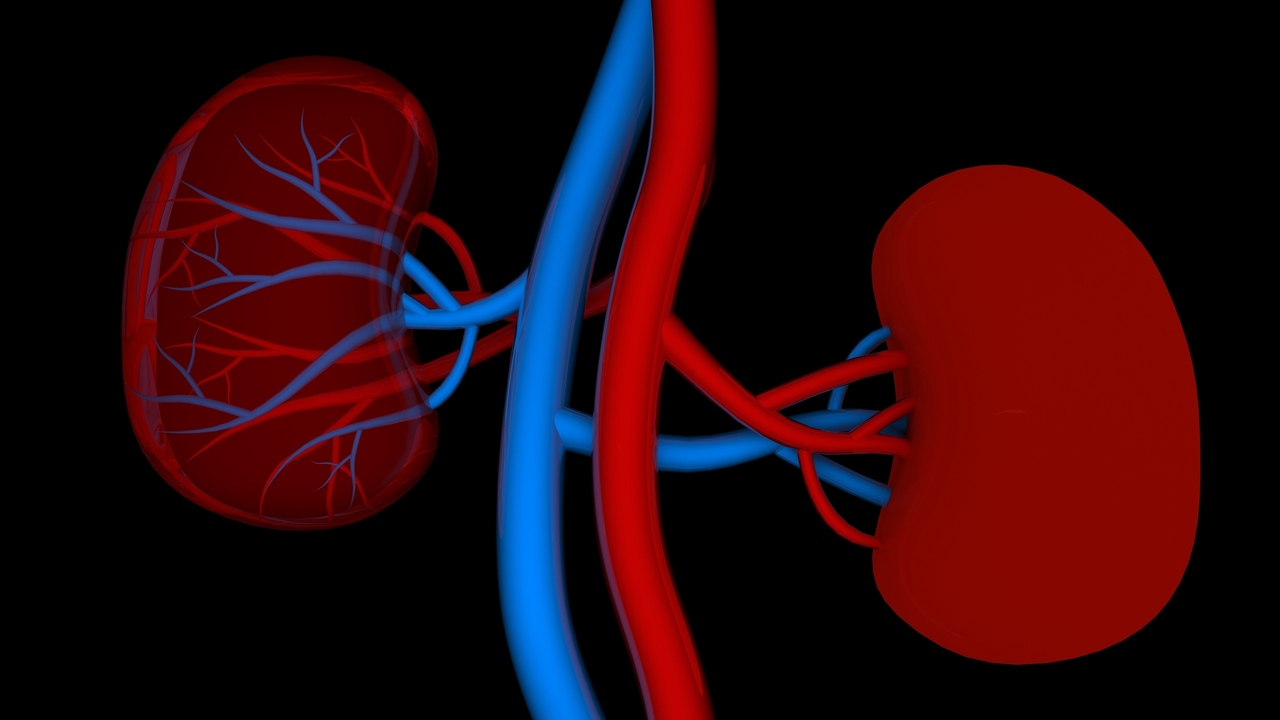 Hemodialysis: Artificial Kidneys Cleaning Your Blood