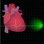Atrial Fibrillation related image
