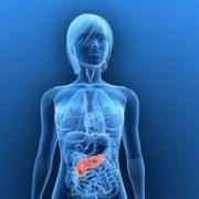 precursor to diabetes is insulin resistance