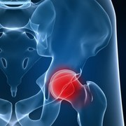joint replacement due to osteoarthritis with Dr. Patel and Jane Linnell