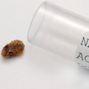 Kidney Stones related image