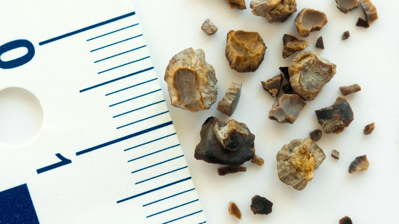 What Are Kidney Stones? How Do You Get Rid of Them?