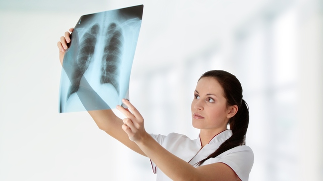 Lung Cancer Awareness Month: 5 Facts May Surprise You