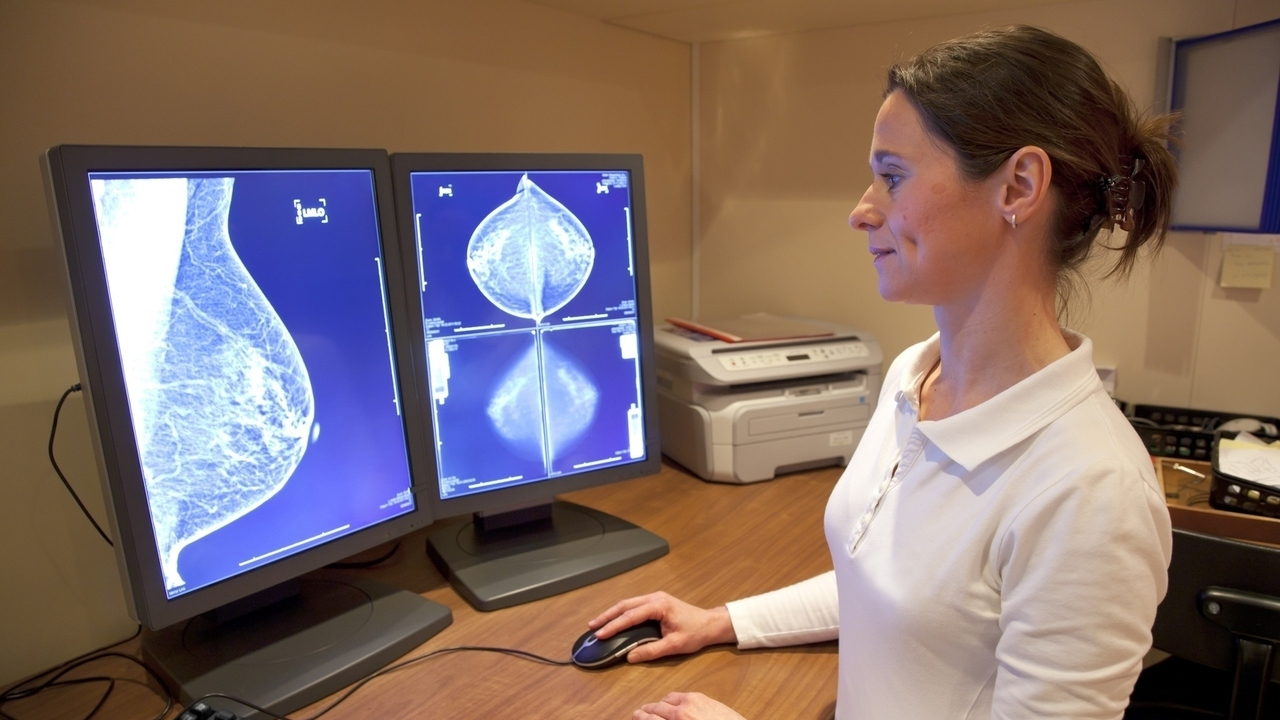 Is a Mammogram My Only Breast Screening Option?