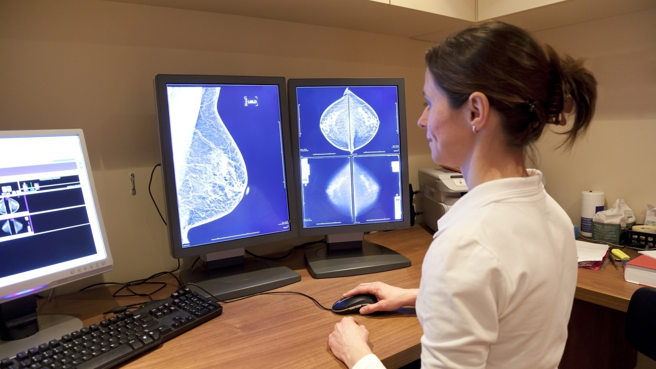Mammograms May Help Prevent Heart Disease