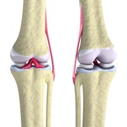 osteoarthritis is a joint disorder