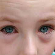 Pink Eye in Kids is Usually Mild but Often Contagious