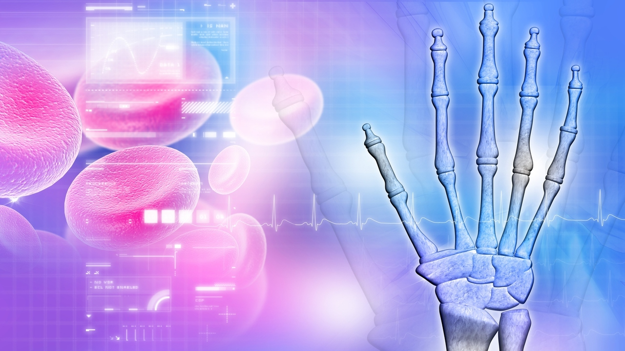 Rheumatoid Arthritis: 4 Warning Signs to Look Out for