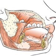 Oral Health: Salivary Gland Infection