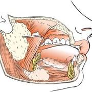 Oral Health: Salivary Gland Infection
