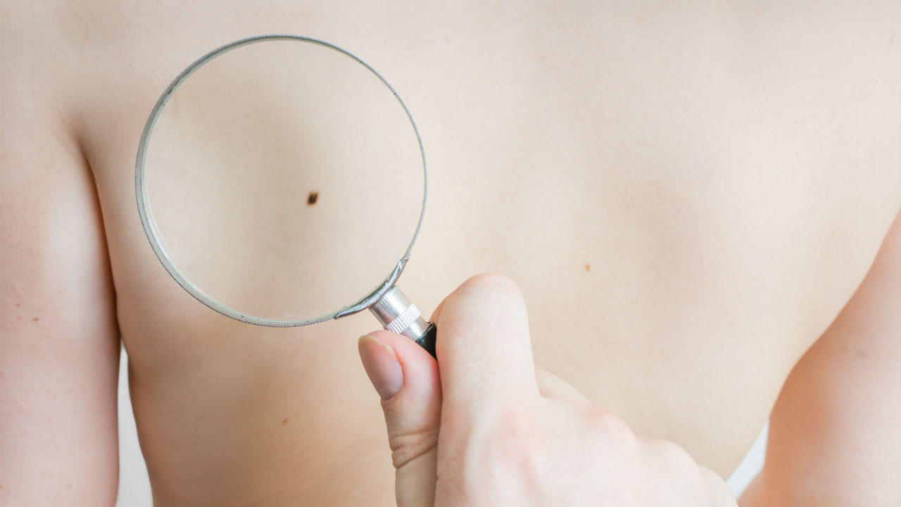 Itchy Mole?  Some Cases of Skin Cancer May Itch