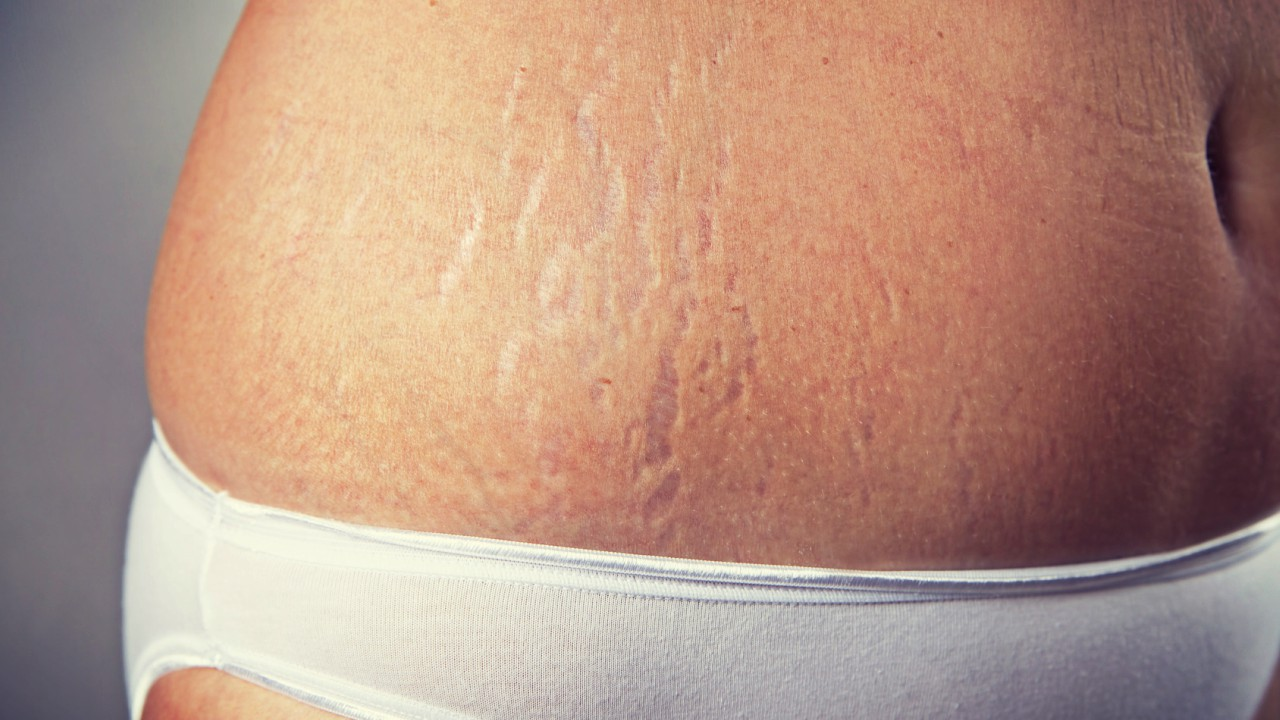 How You Can Combat Stretch Marks During and After Pregnancy