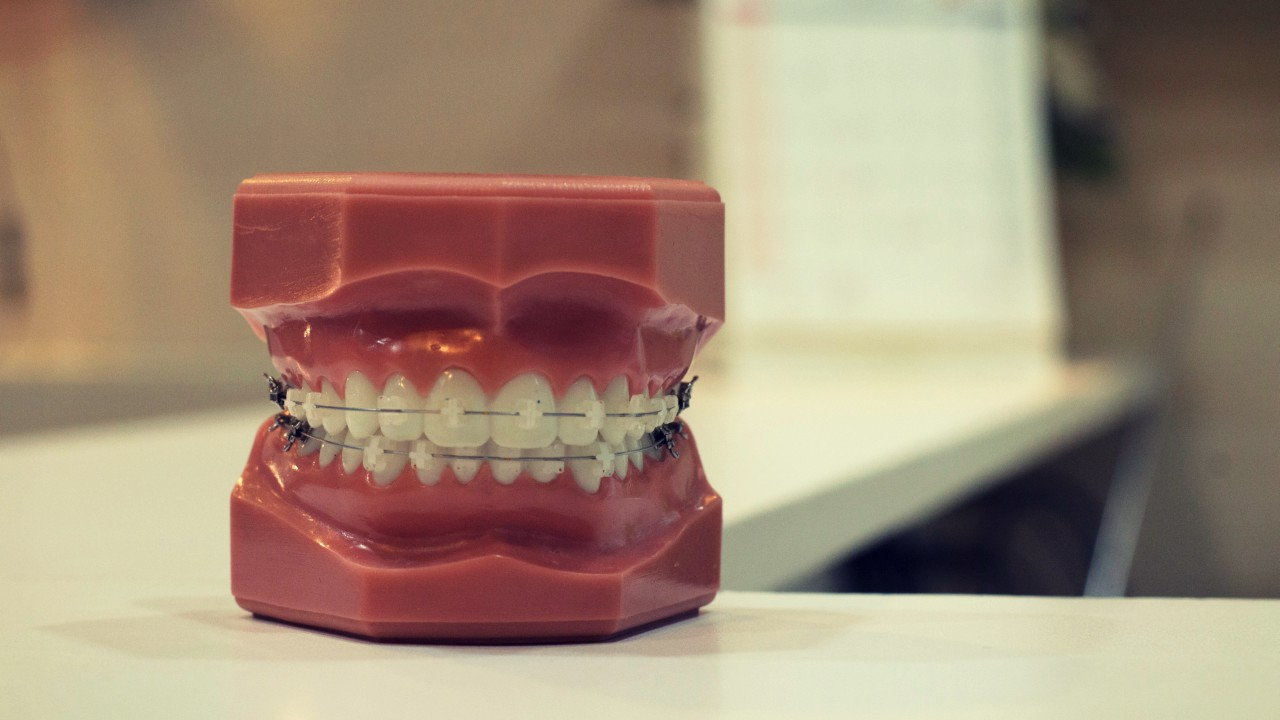 10 Struggles Every Woman With Braces Had to Endure