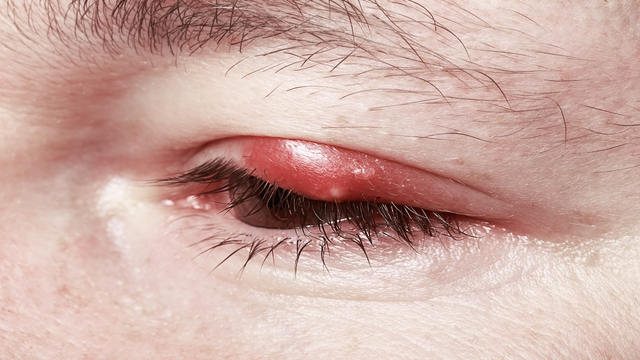 Stye related image