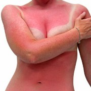 Sunburn related image