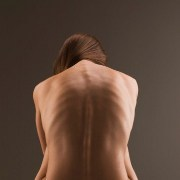 Anorexia Nervosa related image