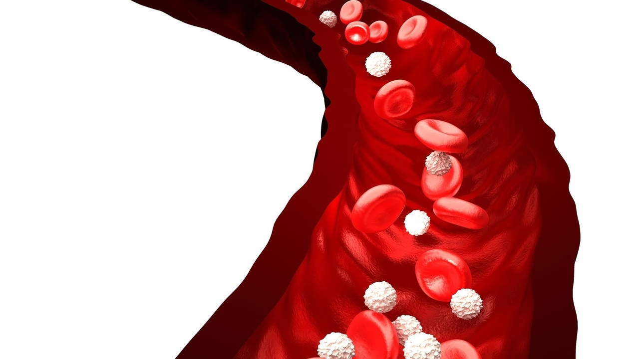 Different Types of Blood Cancer Explained
