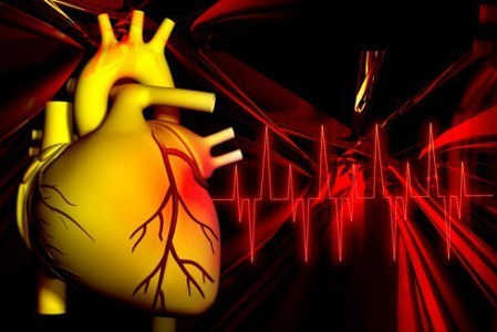 Angina related image