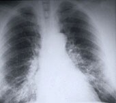 Lung Cancer  related image