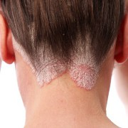 Psoriasis related image
